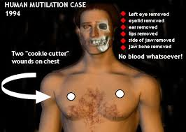 Mutilated Man Sao Paulo Chart