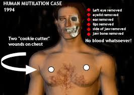 Mutilated Man Sao Paulo Chart